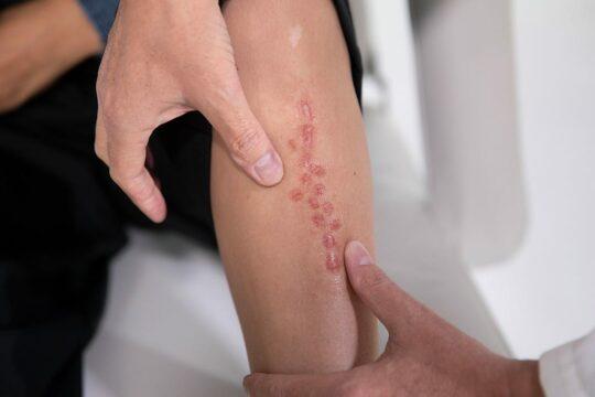 Hoe ontstaat een afwijkend en verdikt litteken