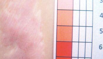 Resultaat van behandeling van Keloïde